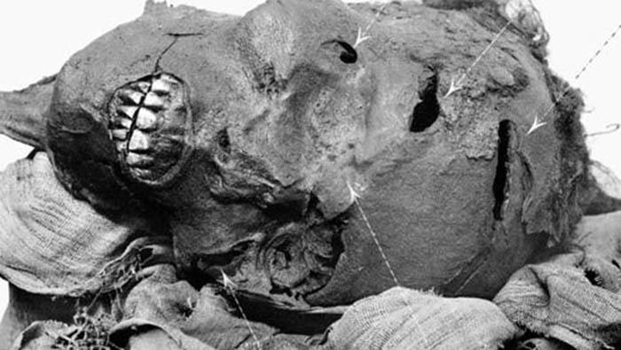 Seqenenre mummy battlewounds